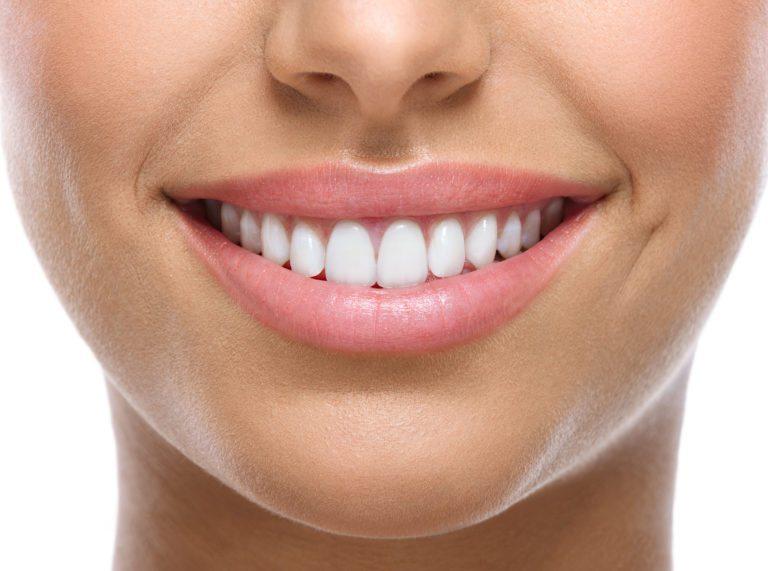 woman's nice white teeth smiling